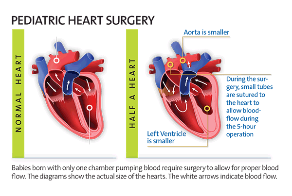 Illustration comparing a normal size heart to a half size heart, which has a smaller aorta and left ventricle
